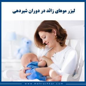 لیزر موهای زائد در دوران شیردهی